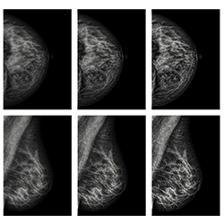 Clarity Breast Imaging