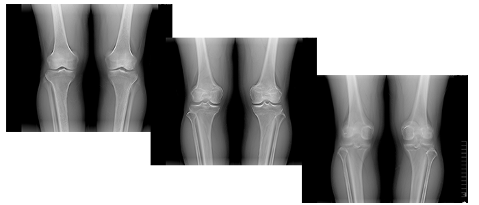 tomosynthesis shimadzu A new tomographic image reconstruction function uses iterative reconstruction that improves the clarity of tomosynthesis-acquired orthopedic images.